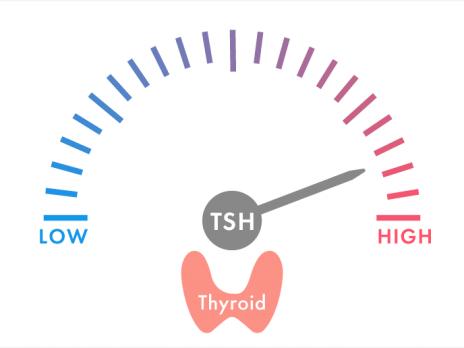 甲状腺刺激ホルモン(TSH)のみ高いと診断されたら